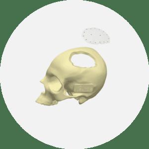 implant-voute-cranienne-euros