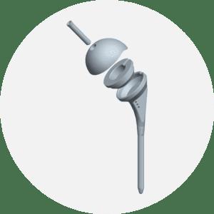 prothese-epaule-revision-euros